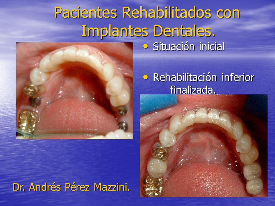 Pacientes Rehabilitados con Implantes Dentales. Situación inicial Situación inicial Rehabilitación inferior finalizada. Rehabilitación inferior finali