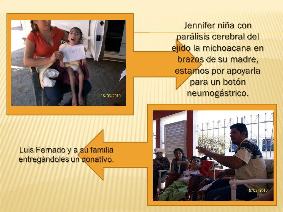 Jennifer niña con parálisis cerebral del ejido la michoacana en brazos de su madre, estamos por apoyarla para un botón neumogástrico.