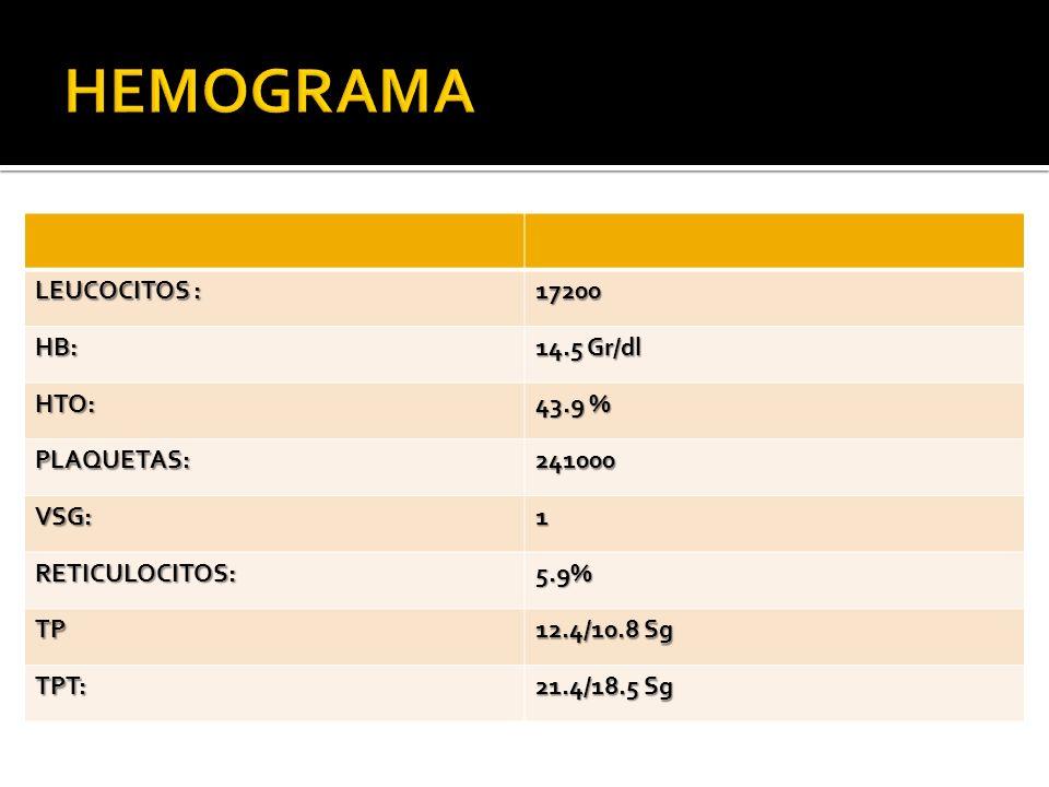 LEUCOCITOS : 17200 HB: 14.5 Gr/dl HTO: 43.9 % PLAQUETAS:241000 VSG:1 RETICULOCITOS:5.9% TP 12.4/10.8 Sg TPT: 21.4/18.5 Sg