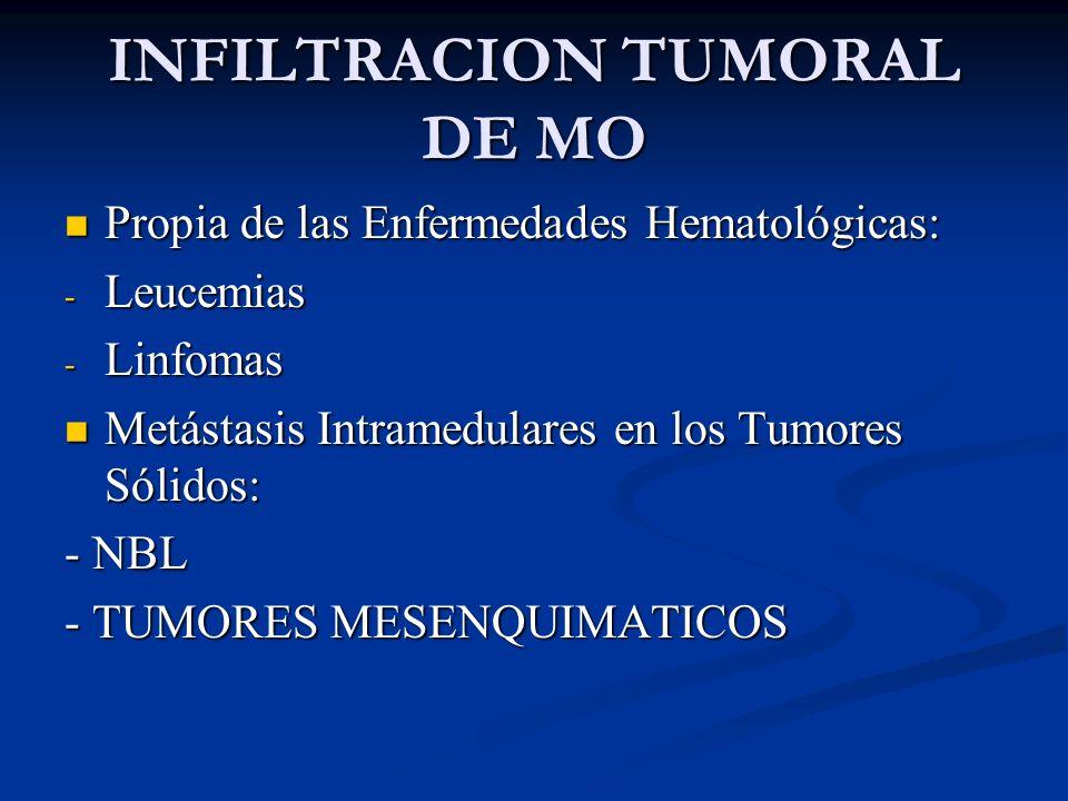 INFILTRACION TUMORAL DE MO Propia de las Enfermedades Hematológicas: Propia de las Enfermedades Hematológicas: - Leucemias - Linfomas Metástasis Intramedulares en los Tumores Sólidos: Metástasis Intramedulares en los Tumores Sólidos: - NBL - TUMORES MESENQUIMATICOS