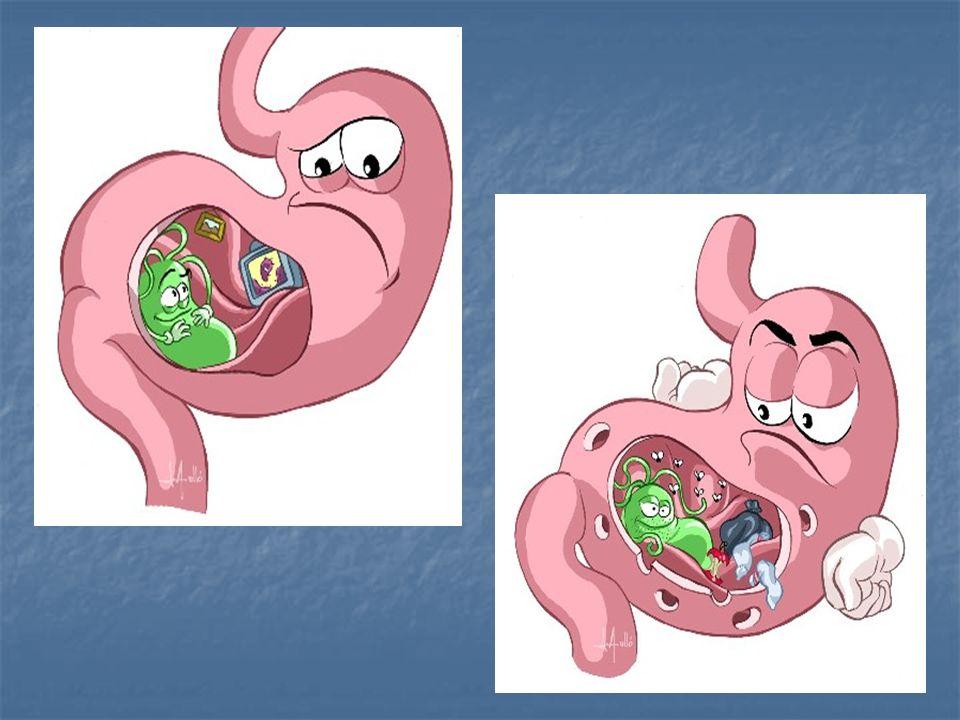 BIBLIOGRAFIA 1- Consenso de Maastricht-II 2000 (2000) 1- Consenso de Maastricht-II 2000 (2000) 2- Consenso Maastricht III (2005) 2- Consenso Maastricht III (2005) 3- American College of Gastroenterology guideline (2007 y revisión del 2008) y uptodate.