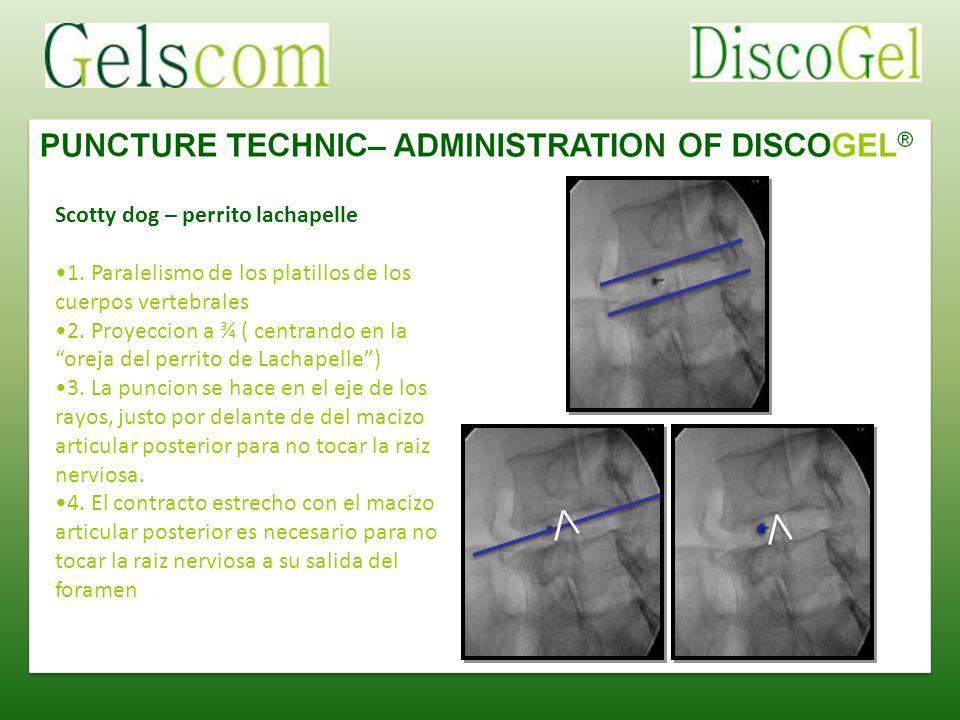Scotty dog – perrito lachapelle 1. Paralelismo de los platillos de los cuerpos vertebrales 2. Proyeccion a ¾ ( centrando en la oreja del perrito de La