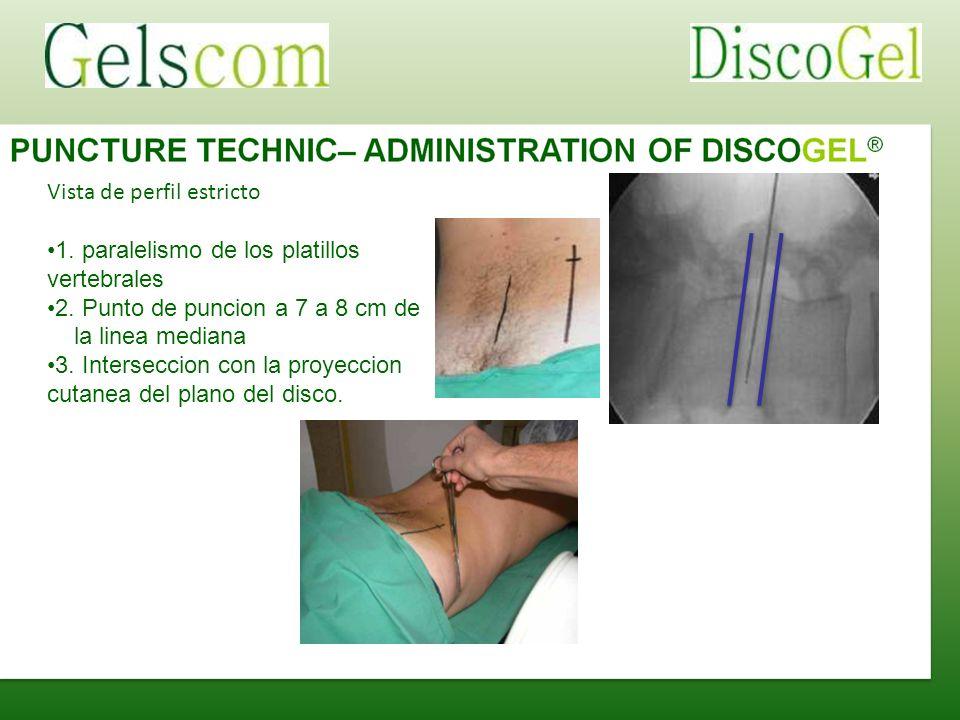Vista de perfil estricto 1. paralelismo de los platillos vertebrales 2. Punto de puncion a 7 a 8 cm de la linea mediana 3. Interseccion con la proyecc