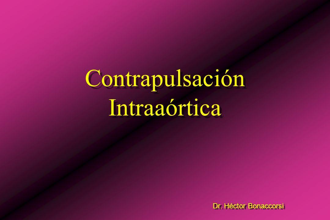 1) Contrapulsación Intraaórtica - No reemplaza totalmente la función de bomba.