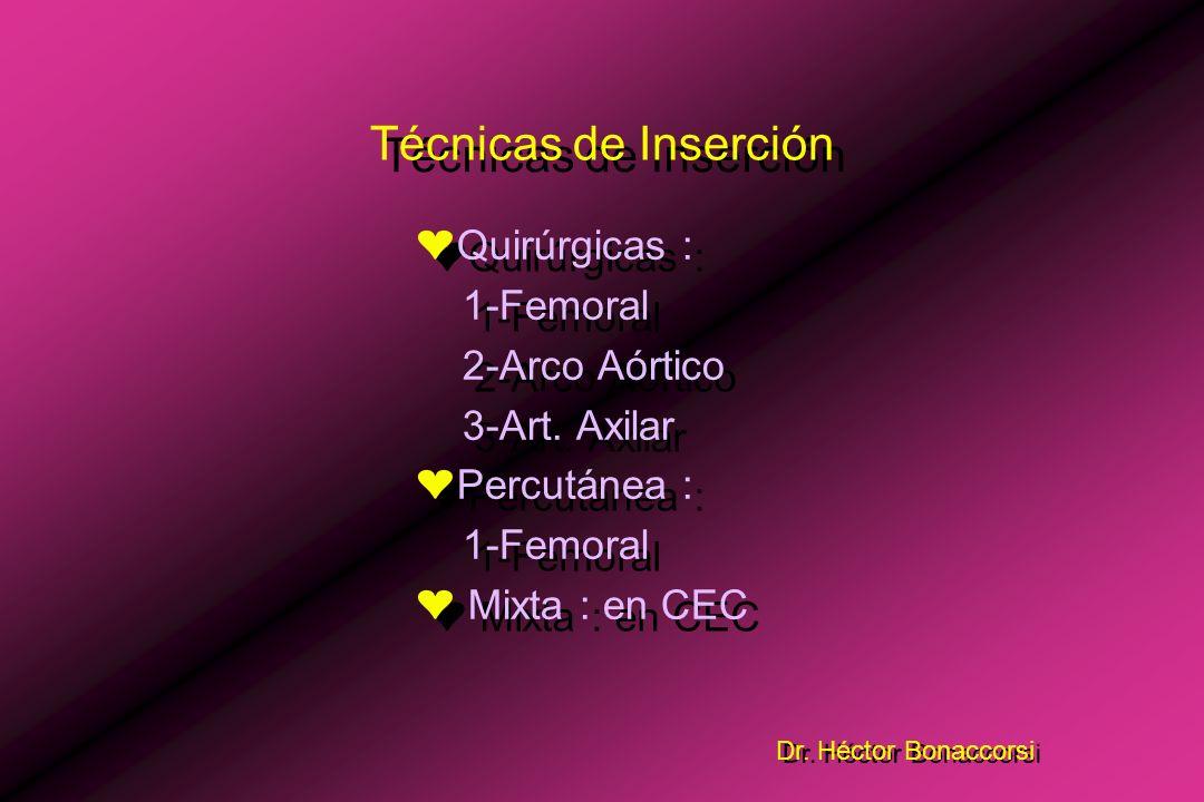 Dr. Héctor Bonaccorsi El dispositivo