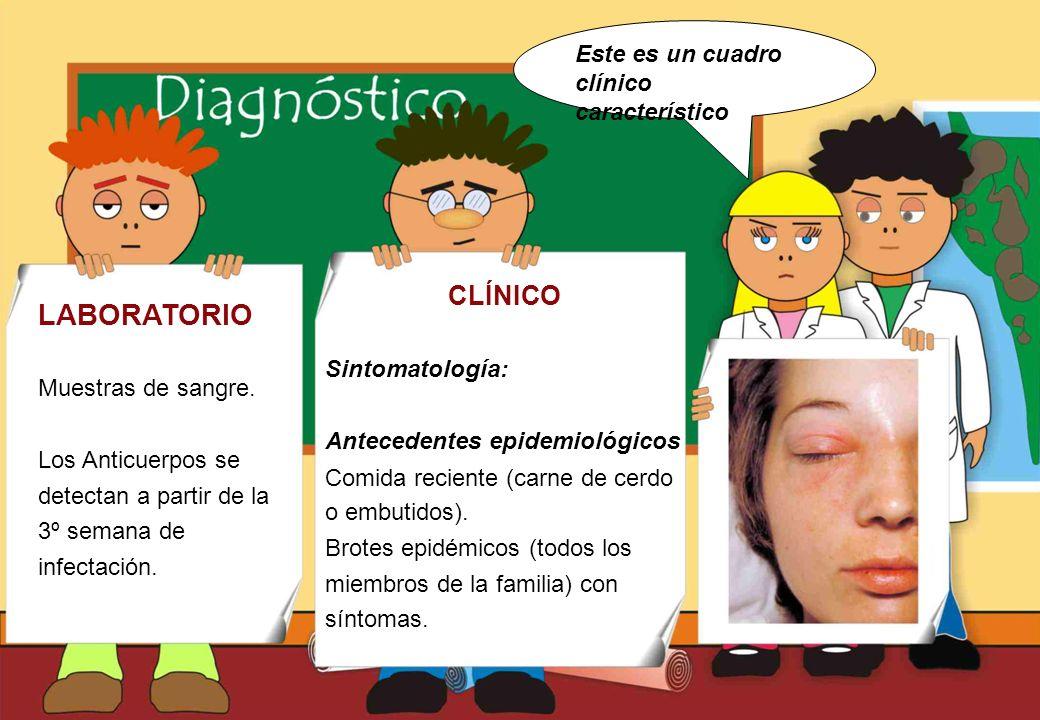 Realizado por Ricardo Bruno – Marzo de 2010 CLÍNICO Sintomatología: Antecedentes epidemiológicos Comida reciente (carne de cerdo o embutidos).