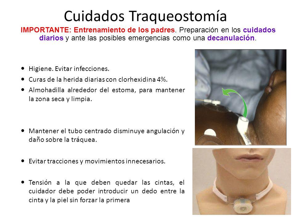Cuidados Traqueostomía Higiene. Evitar infecciones. Curas de la herida diarias con clorhexidina 4%. Almohadilla alrededor del estoma, para mantener la