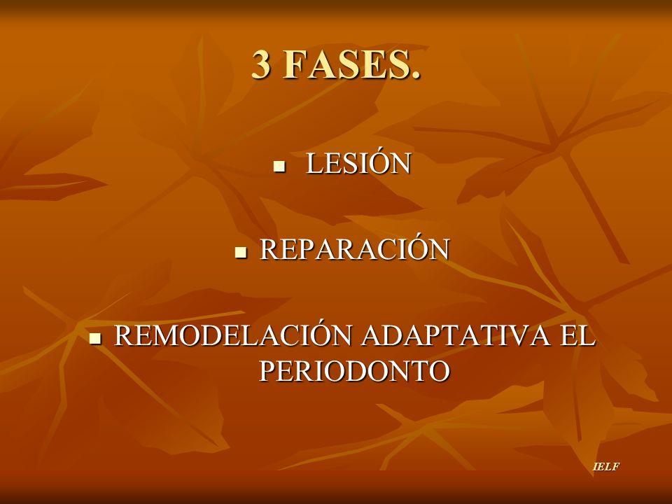 3 FASES. LESIÓN LESIÓN REPARACIÓN REPARACIÓN REMODELACIÓN ADAPTATIVA EL PERIODONTO REMODELACIÓN ADAPTATIVA EL PERIODONTO IELF