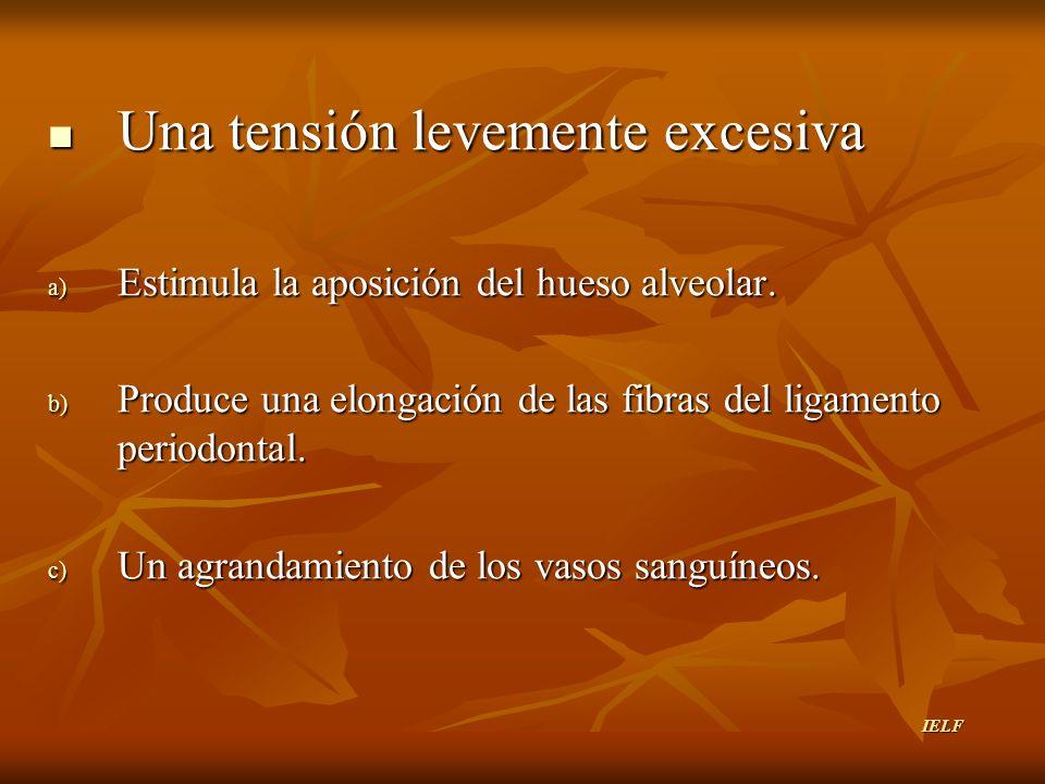 Una tensión levemente excesiva a) E stimula la aposición del hueso alveolar. b) P roduce una elongación de las fibras del ligamento periodontal. c) U
