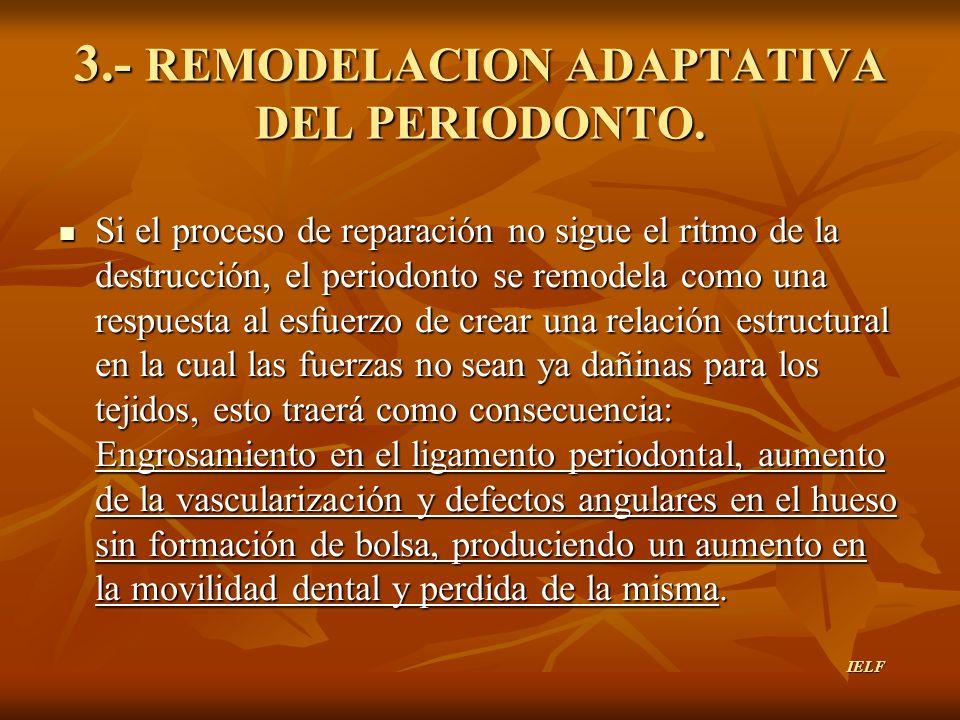 3.- REMODELACION ADAPTATIVA DEL PERIODONTO. Si el proceso de reparación no sigue el ritmo de la destrucción, el periodonto se remodela como una respue
