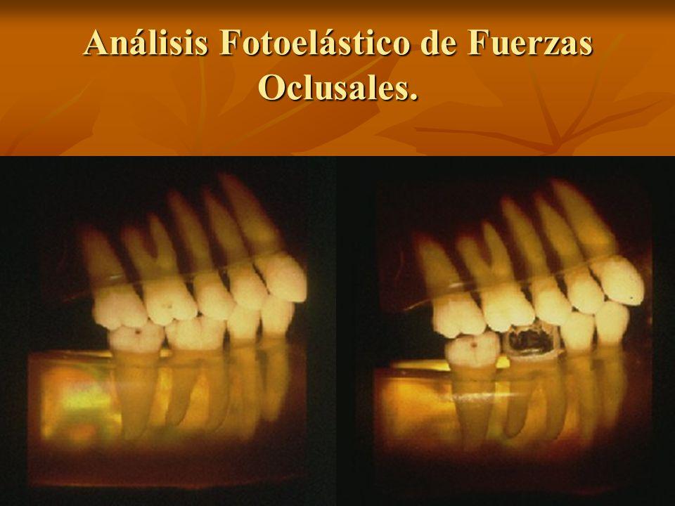 Análisis Fotoelástico de Fuerzas Oclusales.