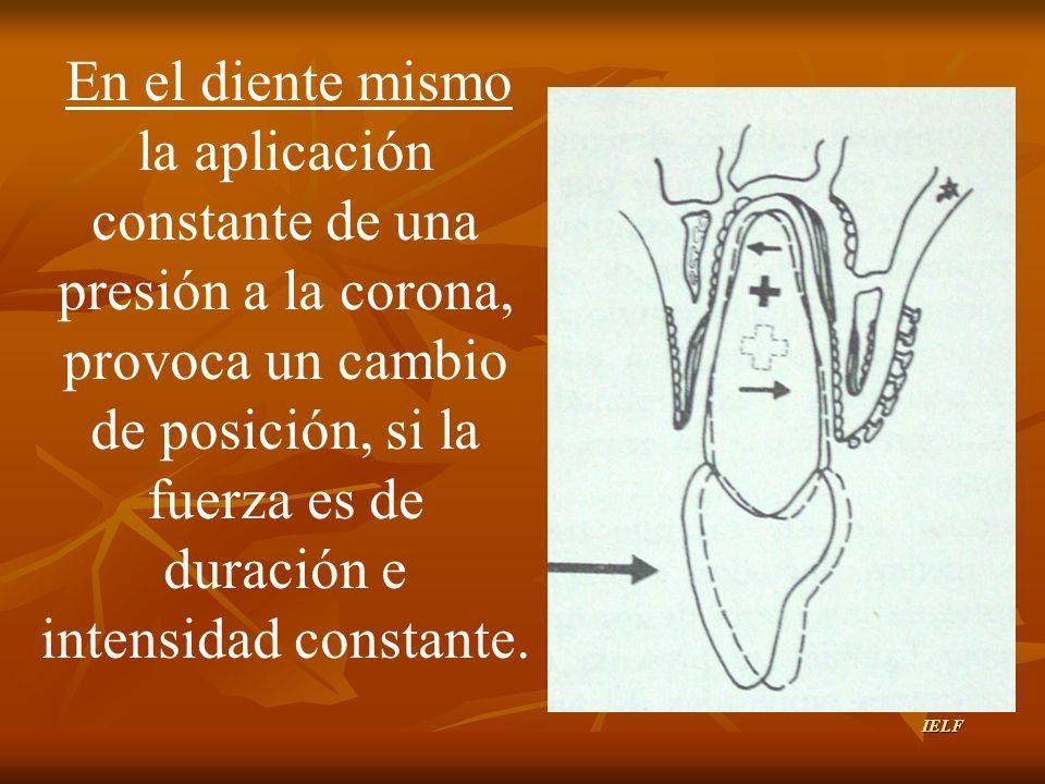 En el diente mismo la aplicación constante de una presión a la corona, provoca un cambio de posición, si la fuerza es de duración e intensidad constan