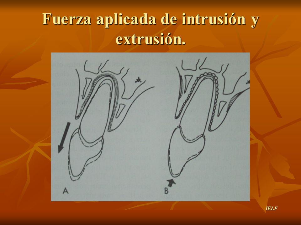Fuerza aplicada de intrusión y extrusión. IELF