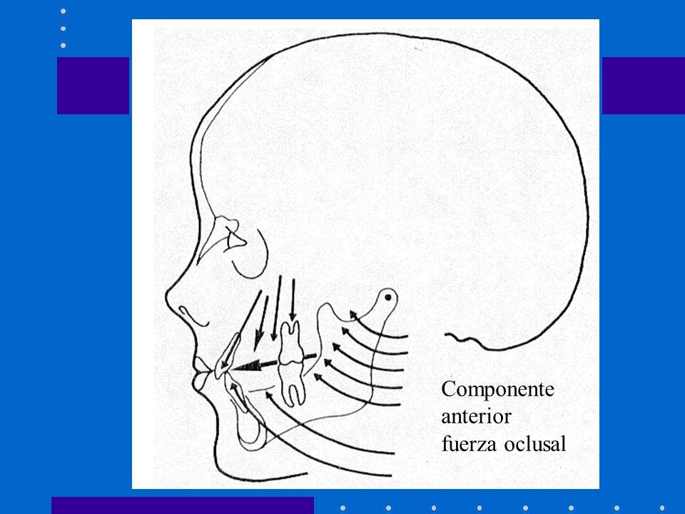 Componente anterior fuerza oclusal