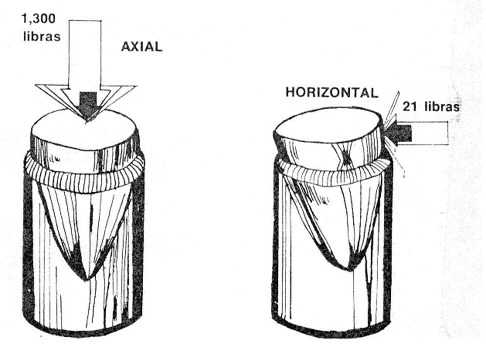 INTRODUCCION A LA OCLUSION A.- Paradores de cierre Funciones i.-Detener la mandíbula cuando ésta se relaciona céntricamente con el maxilar.