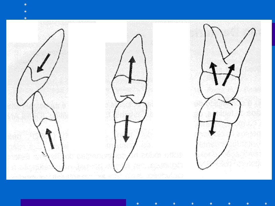 Primer método de carga axial Estas superficies planas pueden ser: -la cima de las crestas marginales -fondo de las fosas Con este tipo de contacto, las fuerzas resultantes tendrán la dirección del eje longitudinal del diente