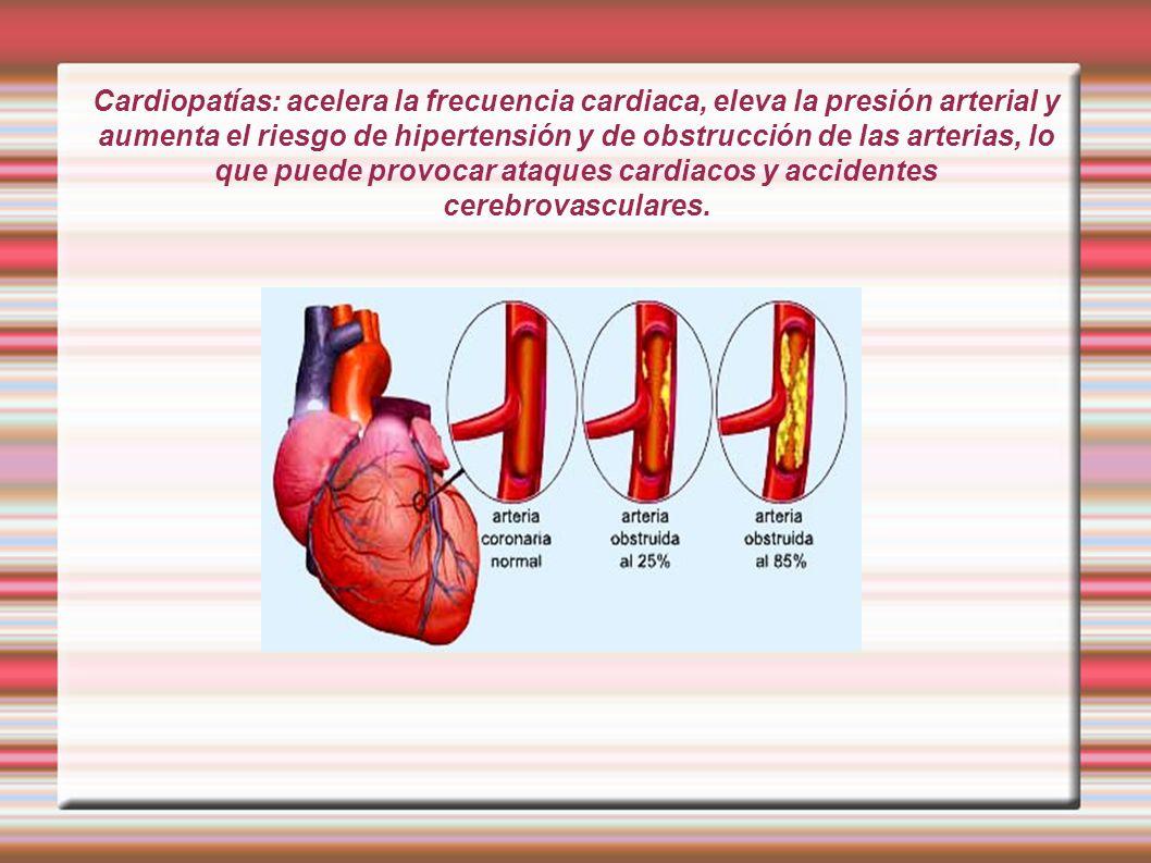 Cardiopatías: acelera la frecuencia cardiaca, eleva la presión arterial y aumenta el riesgo de hipertensión y de obstrucción de las arterias, lo que p