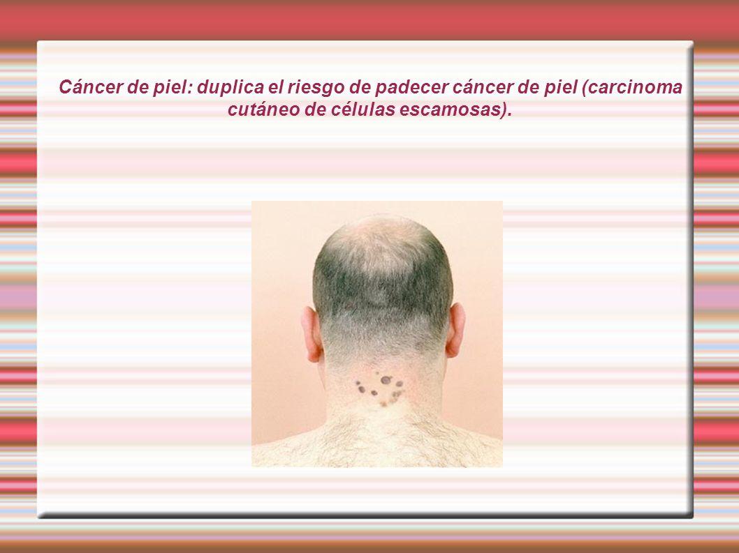 Cáncer de piel: duplica el riesgo de padecer cáncer de piel (carcinoma cutáneo de células escamosas).