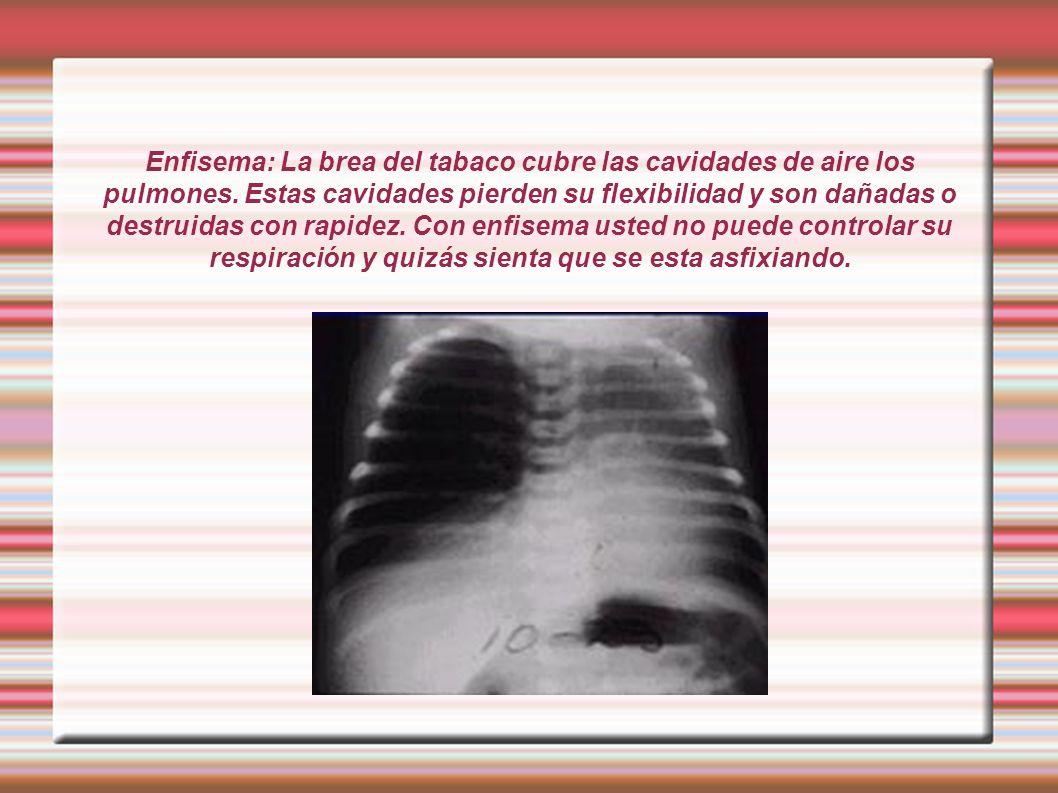 Enfisema: La brea del tabaco cubre las cavidades de aire los pulmones. Estas cavidades pierden su flexibilidad y son dañadas o destruidas con rapidez.