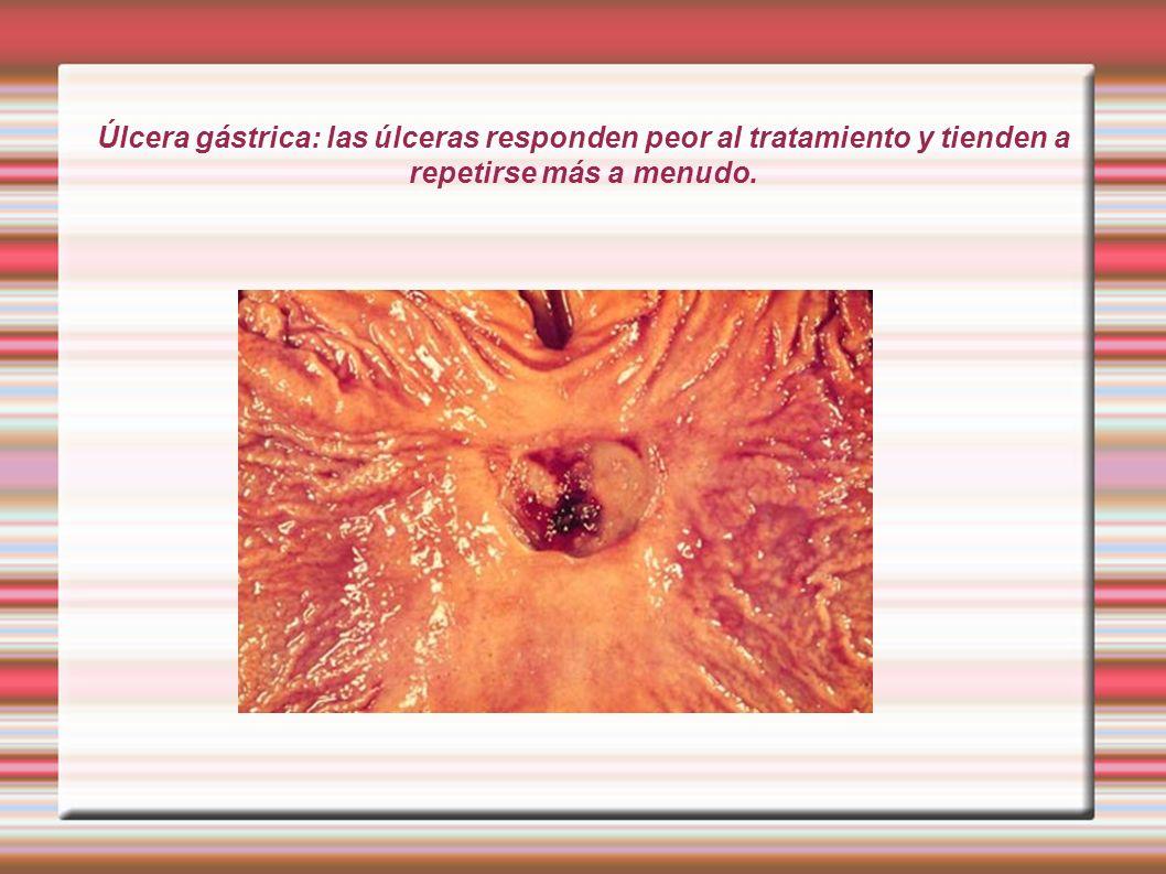 Úlcera gástrica: las úlceras responden peor al tratamiento y tienden a repetirse más a menudo.