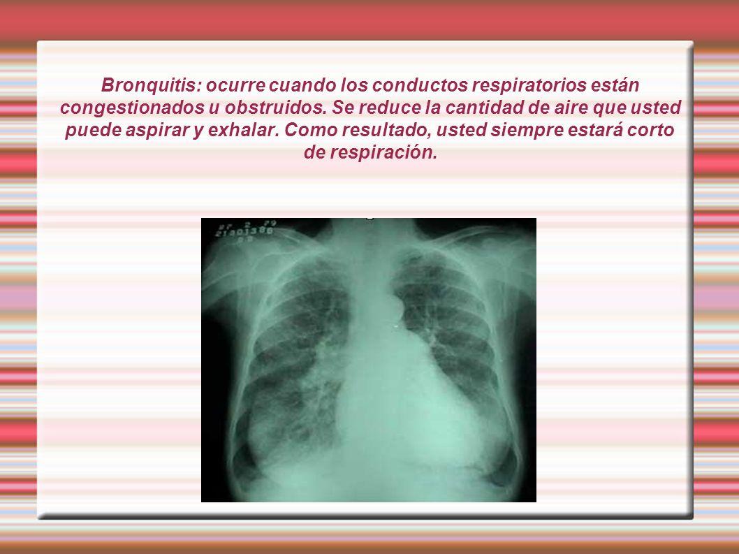 Bronquitis: ocurre cuando los conductos respiratorios están congestionados u obstruidos. Se reduce la cantidad de aire que usted puede aspirar y exhal