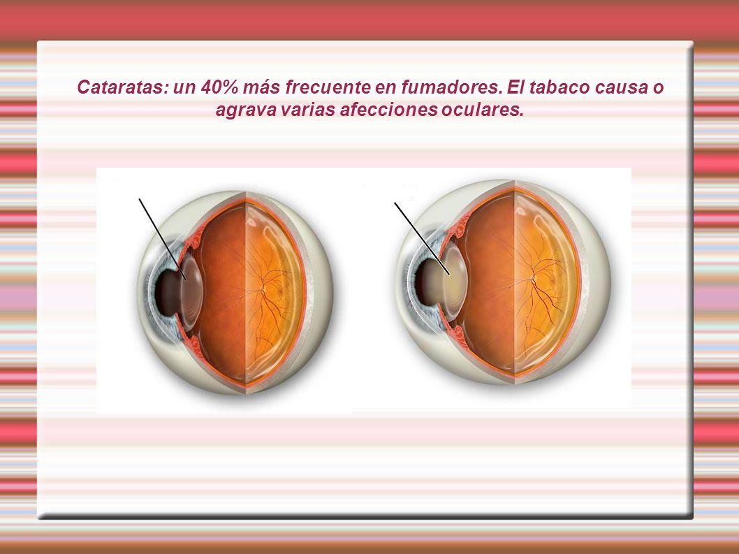 Cataratas: un 40% más frecuente en fumadores. El tabaco causa o agrava varias afecciones oculares.
