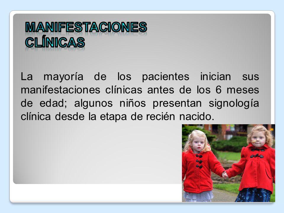 La mayoría de los pacientes inician sus manifestaciones clínicas antes de los 6 meses de edad; algunos niños presentan signología clínica desde la eta