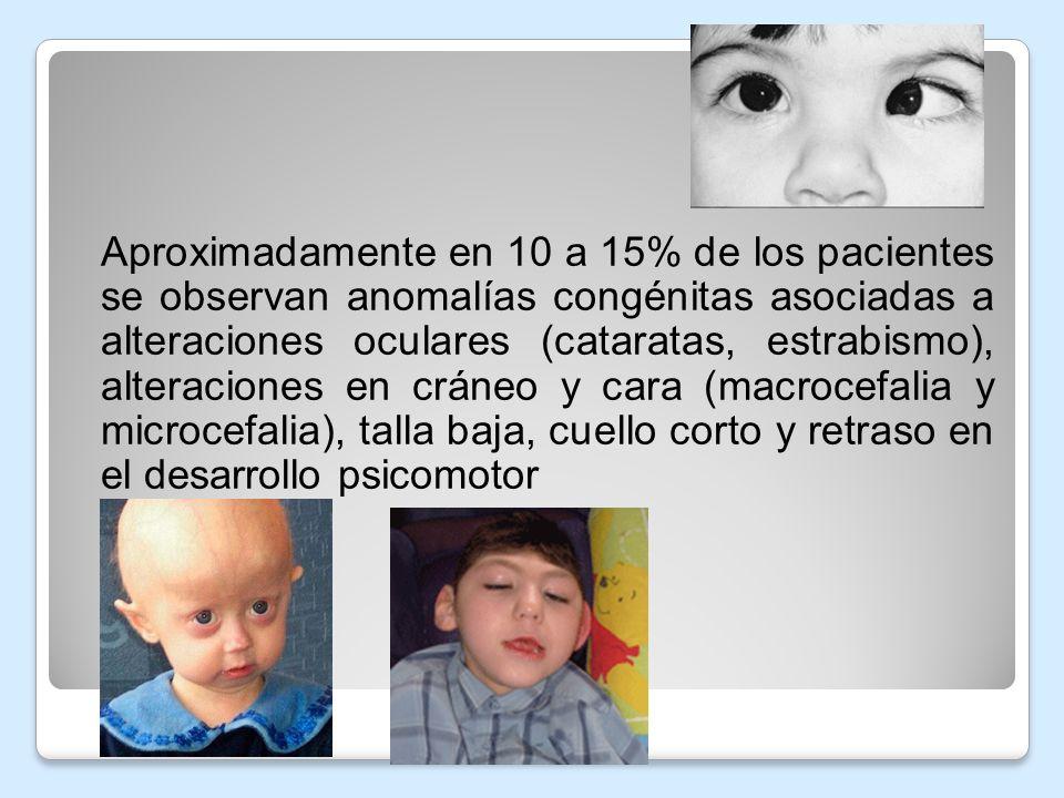 Aproximadamente en 10 a 15% de los pacientes se observan anomalías congénitas asociadas a alteraciones oculares (cataratas, estrabismo), alteraciones