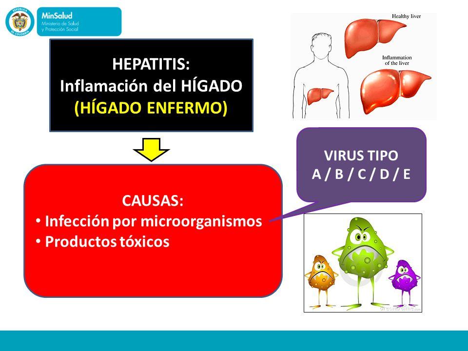 HEPATITIS: Inflamación del HÍGADO (HÍGADO ENFERMO) CAUSAS: Infección por microorganismos Productos tóxicos VIRUS TIPO A / B / C / D / E