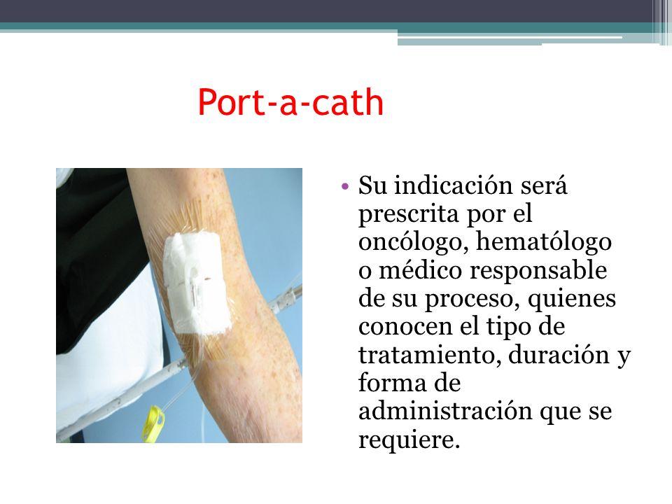 Port-a-cath Su indicación será prescrita por el oncólogo, hematólogo o médico responsable de su proceso, quienes conocen el tipo de tratamiento, durac