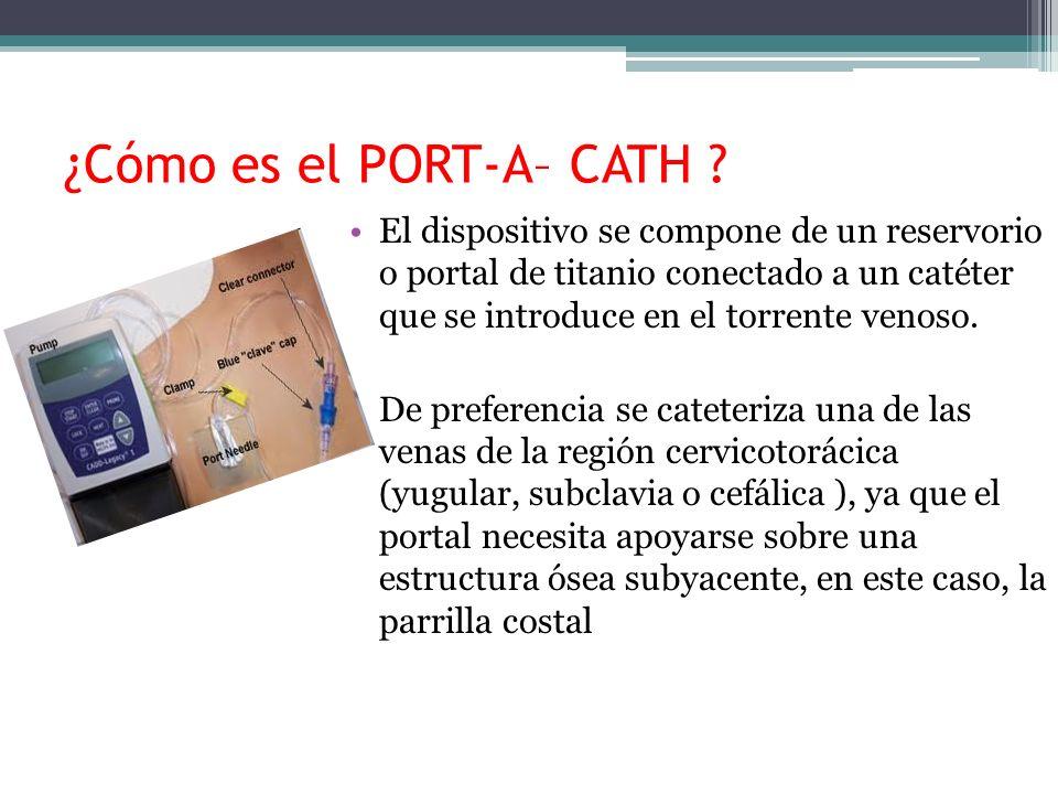 ¿Cómo es el PORT-A– CATH ? El dispositivo se compone de un reservorio o portal de titanio conectado a un catéter que se introduce en el torrente venos