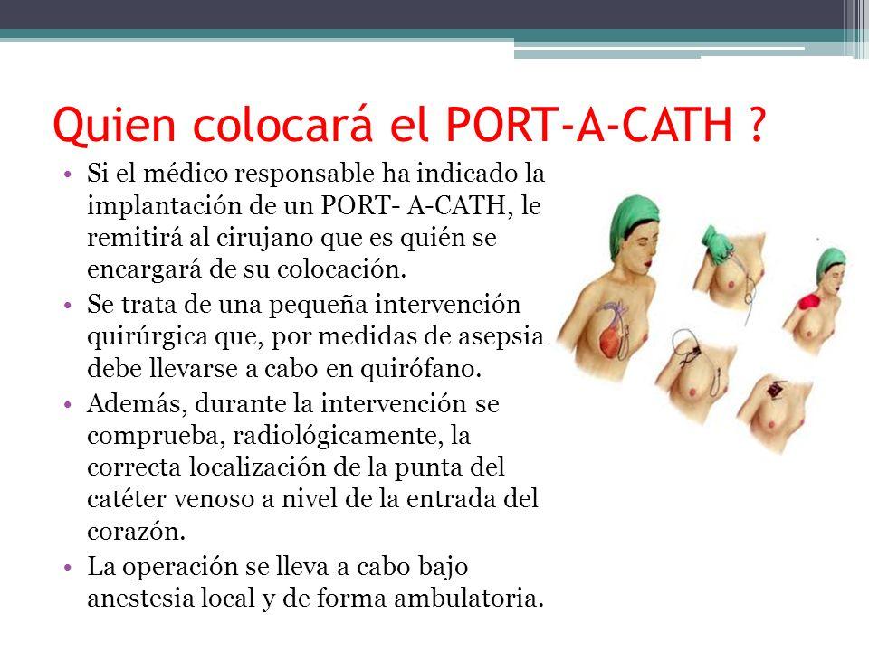 Quien colocará el PORT-A-CATH ? Si el médico responsable ha indicado la implantación de un PORT- A-CATH, le remitirá al cirujano que es quién se encar