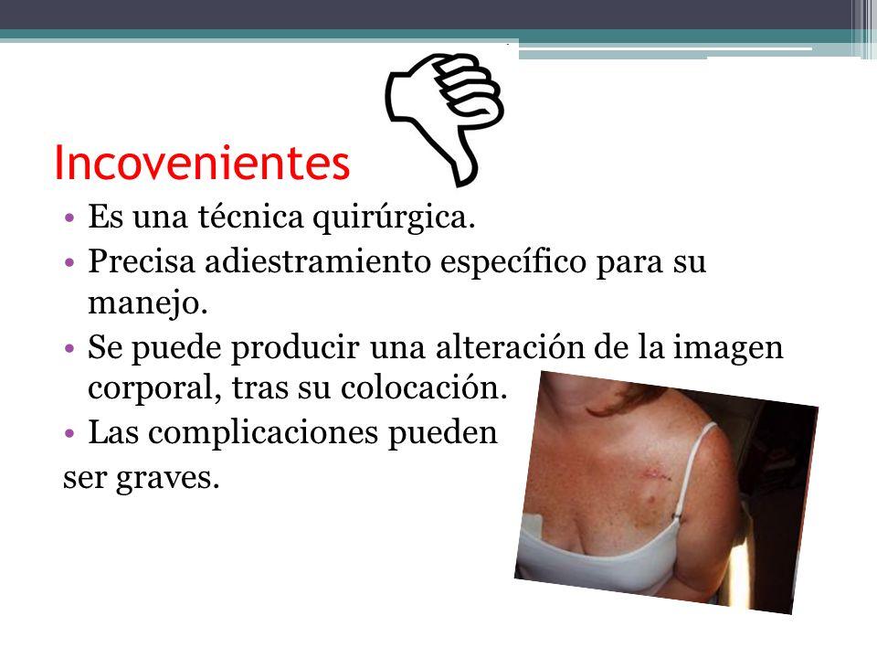 Incovenientes Es una técnica quirúrgica. Precisa adiestramiento específico para su manejo. Se puede producir una alteración de la imagen corporal, tra