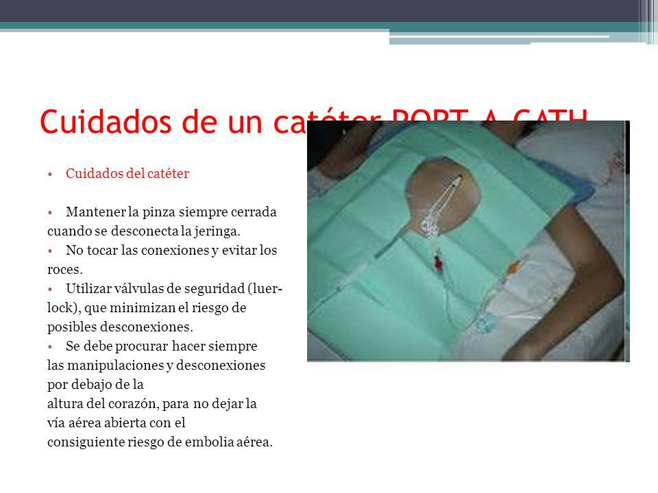 Cuidados de un catéter PORT-A-CATH Cuidados del catéter Mantener la pinza siempre cerrada cuando se desconecta la jeringa. No tocar las conexiones y e