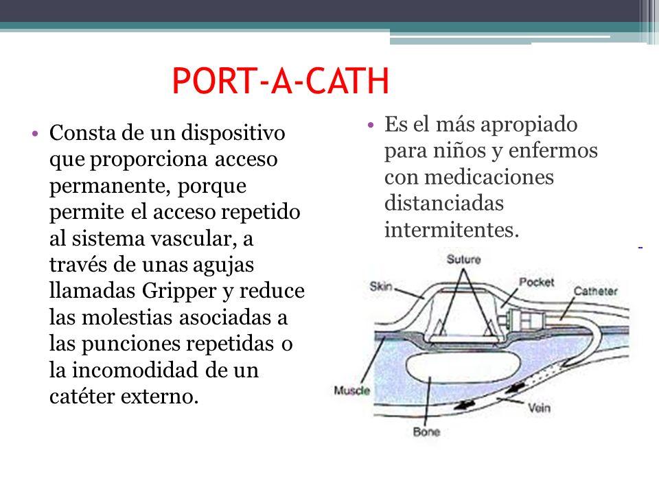 PORT-A-CATH Consta de un dispositivo que proporciona acceso permanente, porque permite el acceso repetido al sistema vascular, a través de unas agujas