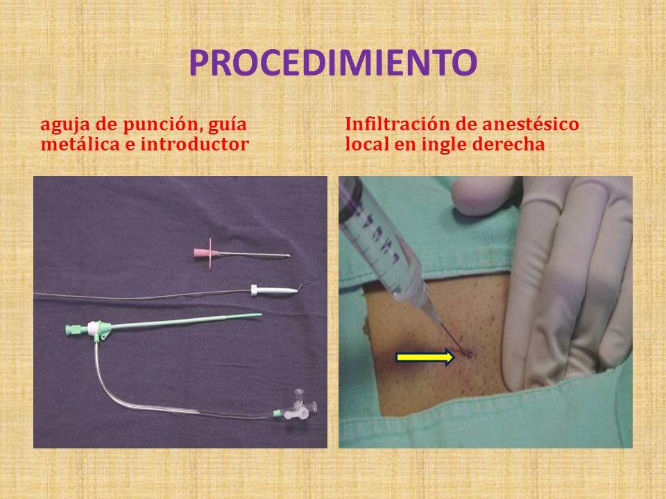 PROCEDIMIENTO aguja de punción, guía metálica e introductor Infiltración de anestésico local en ingle derecha