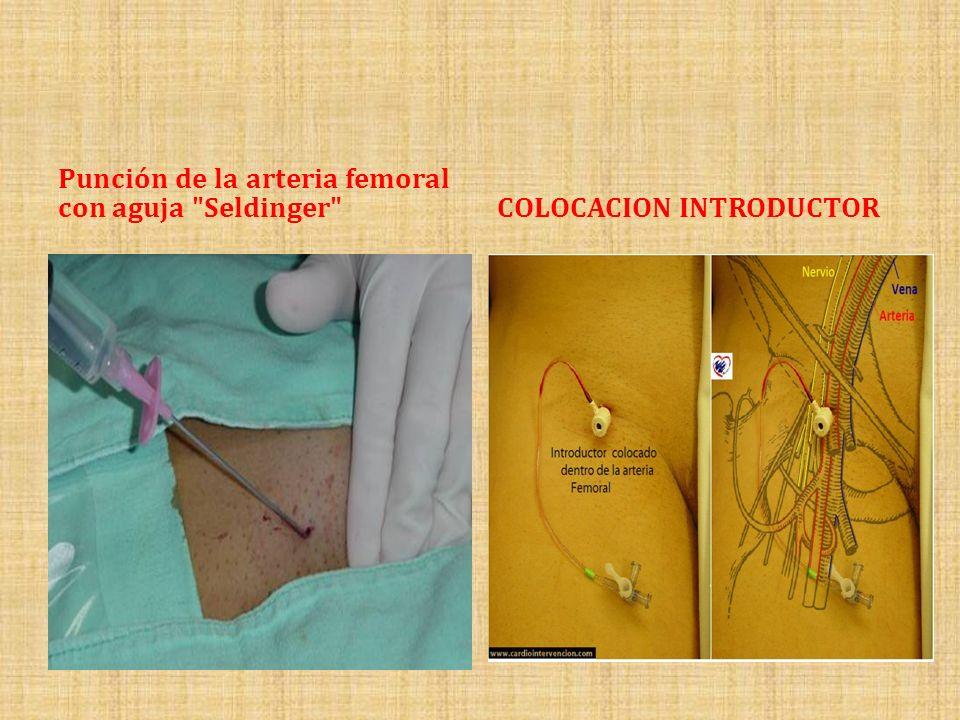 Punción de la arteria femoral con aguja