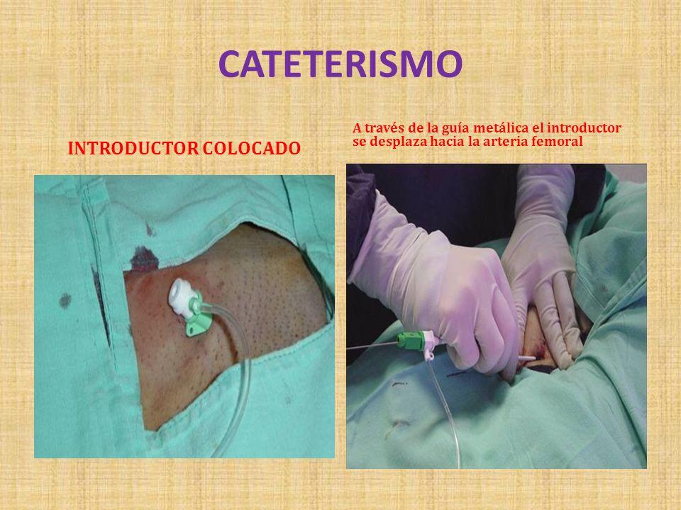 CATETERISMO INTRODUCTOR COLOCADO A través de la guía metálica el introductor se desplaza hacia la arteria femoral