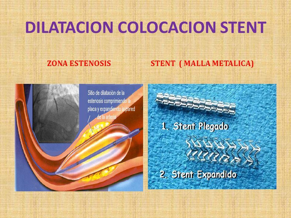 DILATACION COLOCACION STENT ZONA ESTENOSISSTENT ( MALLA METALICA)
