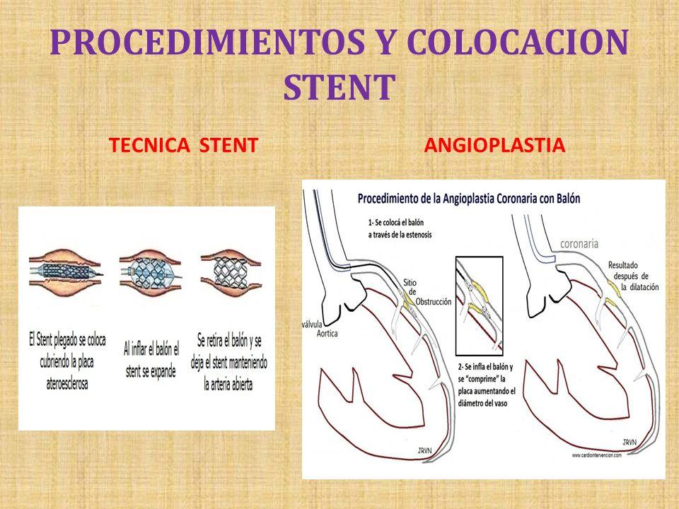 PROCEDIMIENTOS Y COLOCACION STENT TECNICA STENTANGIOPLASTIA