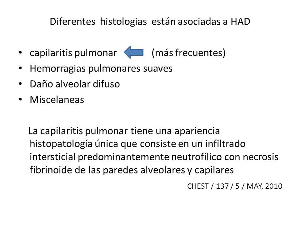 Diferentes histologias están asociadas a HAD capilaritis pulmonar (más frecuentes) Hemorragias pulmonares suaves Daño alveolar difuso Miscelaneas La c