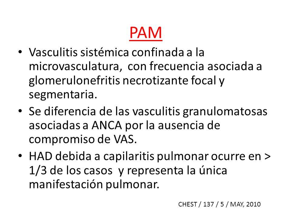 PAM Vasculitis sistémica confinada a la microvasculatura, con frecuencia asociada a glomerulonefritis necrotizante focal y segmentaria. Se diferencia