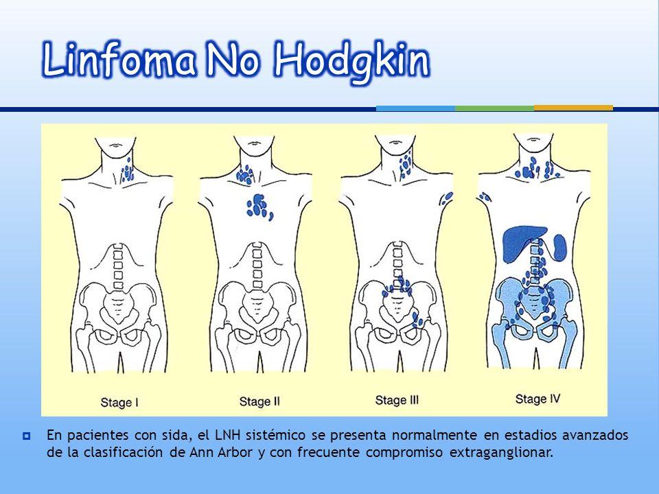 Compromiso de SNC Frecuente Momento del diagnóstico: 20% Durante la evolución.