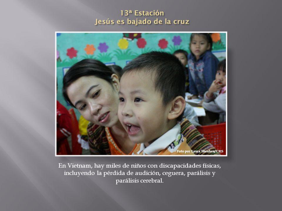 En Vietnam, hay miles de niños con discapacidades físicas, incluyendo la pérdida de audición, ceguera, parálisis y parálisis cerebral. Foto por Laura