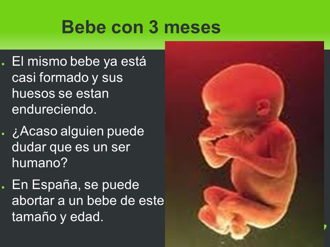 Bebe con 3 meses El mismo bebe ya está casi formado y sus huesos se estan endureciendo. ¿Acaso alguien puede dudar que es un ser humano? En España, se