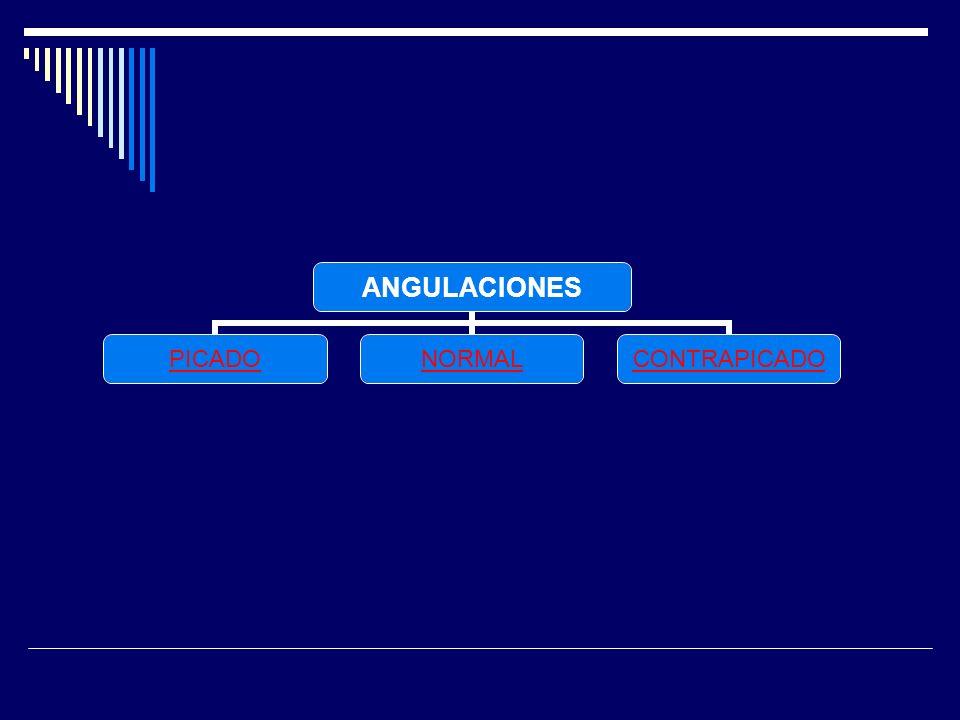 ANGULACIONES PICADONORMALCONTRAPICADO