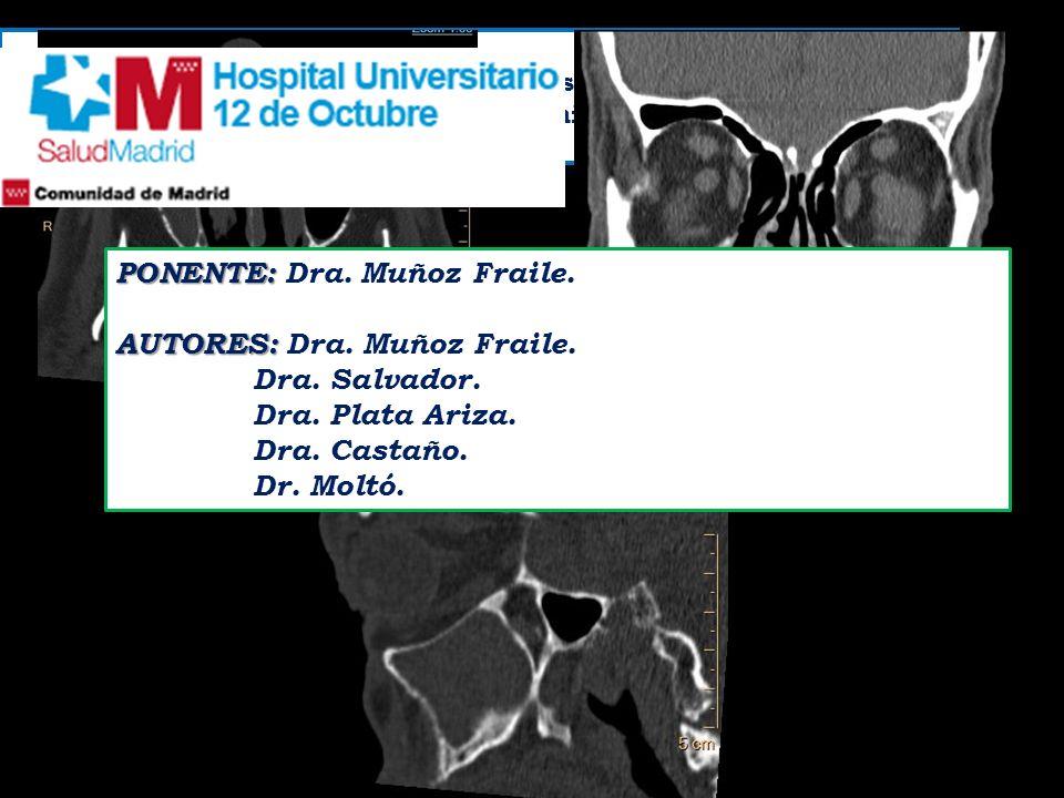 Se solicita la realización de TC de senos paranasales a varón de 74 años para la valoración de sinusitis crónica. PONENTE: PONENTE: Dra. Muñoz Fraile.