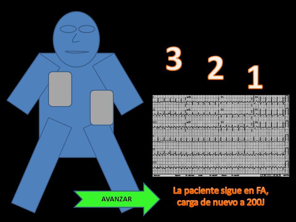 1 4 789 6 3 5 2 0 200 BIFÁSICO SINCRO- NIZADO LANZA DESCARGA
