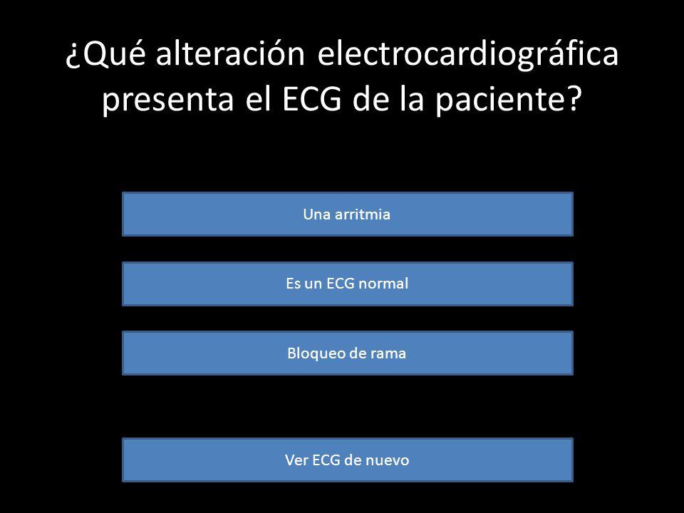 Este es el ECG de la paciente. Obsérvalo bien y responde a las cuestiones que te planteamos seguidamente… AVANZAR