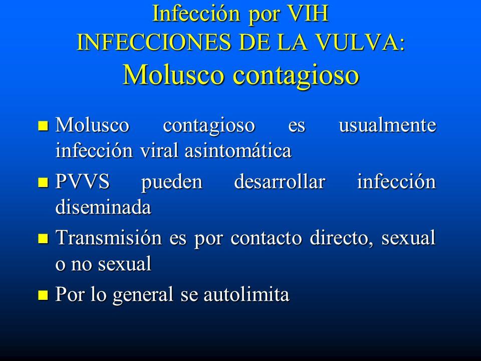 Infección por VIH INFECCIONES DE LA VULVA: Molusco contagioso Molusco contagioso es usualmente infección viral asintomática Molusco contagioso es usua